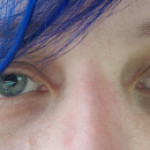 Went to the ER today for having only one eye dilated at 15mm without any reason