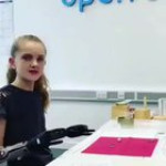Young girl learning to use her prosthetic arms