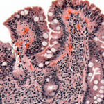 In infants, changes in gut microbiome precede onset of celiac disease