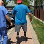 2nd day of walking in prosthetic legs without any assistive devices (like crutches or canes). Lfg!