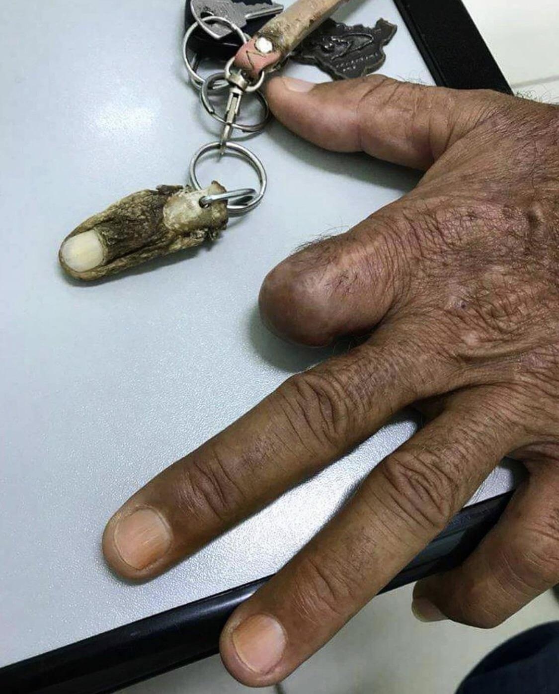 Amputated finger turns into a keychain 😵😱😳